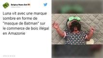 Les internautes se mobilisent pour aider une petite fille née avec un « masque de Batman »