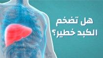 تضخم الكبد هل هو خطير