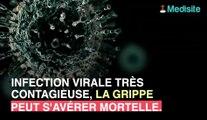 Grippe : quels sont les signes d'une infection mortelle ?