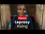 New Cases Of Leprosy
