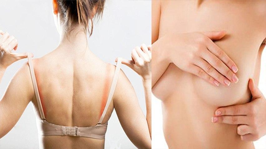 स्तन रैशेस के लिए घरेलू उपचार | Rashes Home Remedies | Boldsky