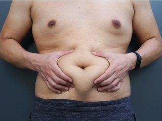 431 Euro pro Jahr: Fettleibigkeit hat wirtschaftliche Folgen