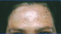 bd-melasma-causas-tratamientos-101019