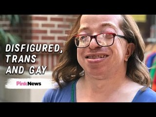Surviving gender dysphoria as a disfigured, transgender, gay woman