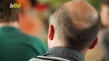 Working Overtime Could Be Making You Go Bald