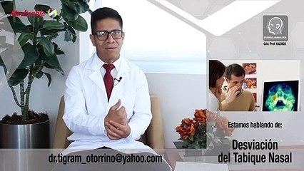 DESVIACIÓN DEL TABIQUE NASAL