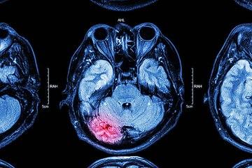 La actividad cerebral excesiva ligada a una vida más corta