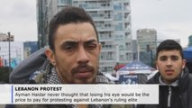 Protesters suffer eye injuries in Lebanon demonstrations