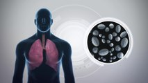New research finds that aspirin could protect our lungs from air pollution