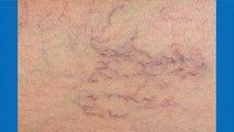 bd-tratamientos-arañitas-vasculares-111119
