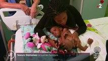 Lyon : l'opération pour séparer deux sœurs siamoises est un succès