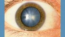 bd-problemas-en-ojos-por-diabetes-141119