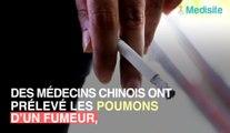 Des médecins révèlent les vraies images des poumons d'un fumeur