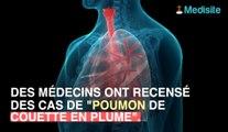 Les couettes et oreillers à plumes, un danger pour vos poumons !