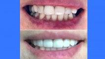 bd-beneficios-de-carillas-dentales-251119