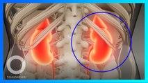 世界最大腎臟重達7.4公斤 印部醫師動手術取出