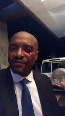 agression d'un avocat a Lubumbashi