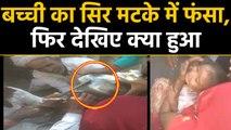 Rajasthan में स्टील के मटके में फंसा बच्ची का सिर, फिर देखिए कैसे बची मासूम की जान | वनइंडिया हिंदी