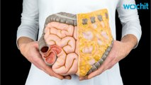 Researchers ID New Treatment For Colorectal Cancer