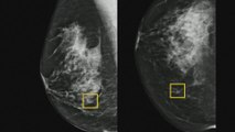 Google system could improve breast cancer detection
