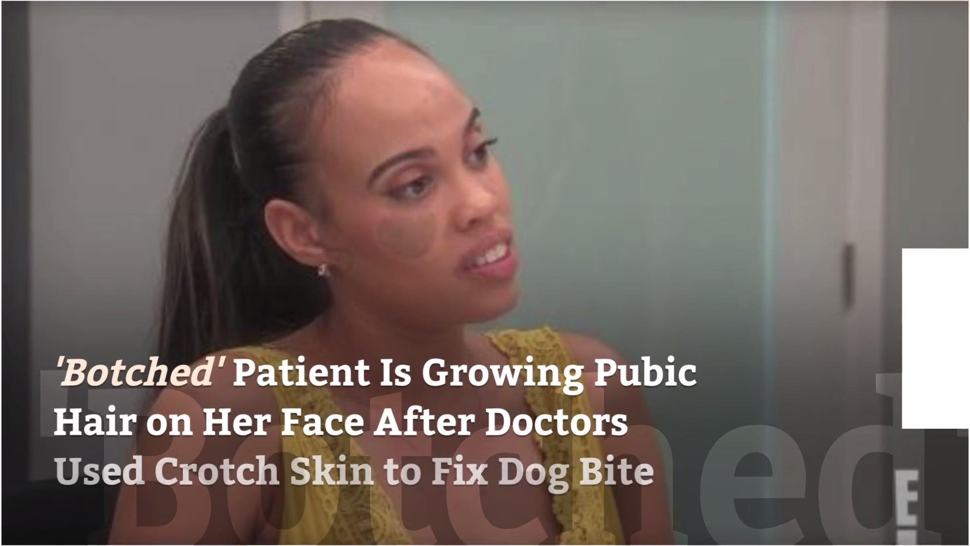 'Botched' Patient Is Growing Pubic Hair on Her Face After Doctors Used Crotch Skin to Fix Dog Bite