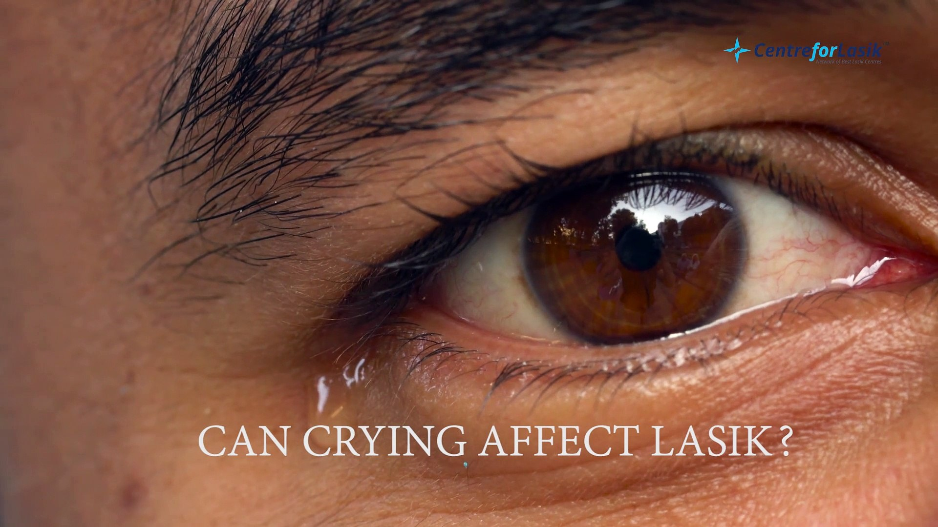 Is Crying Harmful After Lasik Eye Surgery Video Dailymotion