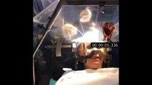 brain surgery, no narcosis, patient awake(Beyin Ameliyatı (hasta uyanık) Narkoz yok)