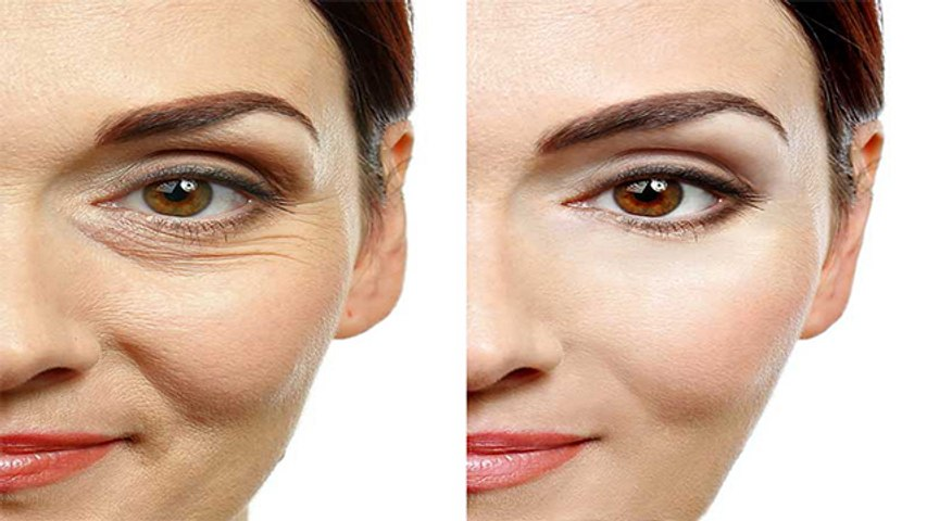 स्किन की झुर्रियों को दूर करता है अदरक | Ginger Home Remedies for Wrinkles | Boldsky