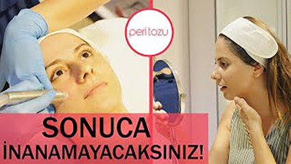 Hydrafacial uygulaması | Peri Tozu