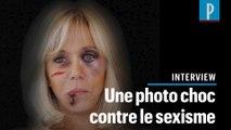 Ses œuvres montrent Brigitte Macron et Michelle Obama blessées : l'artiste s'explique
