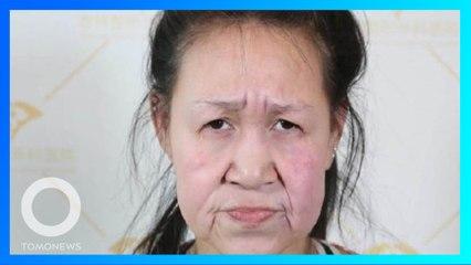 15歲少女罹怪病滿臉皺紋像阿嬤 善心醫院助「換新臉」