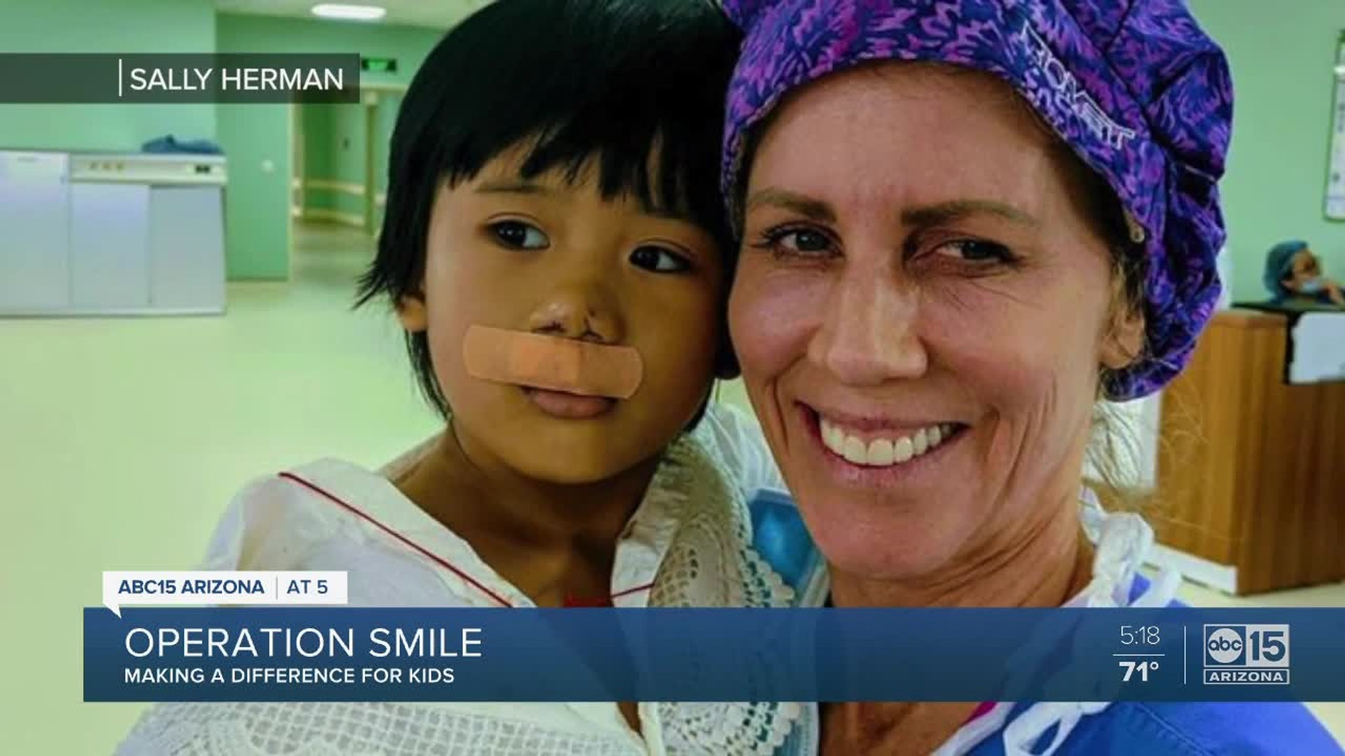 Valley nurse helps hundreds of children with non-profit, Operation Smile
