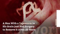 A Man With a Tapeworm in His Brain Just Had Surgery to Remove It After 10 Years