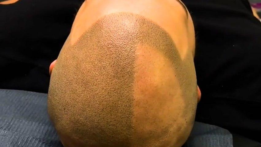 Scalp tattoos create the appearance of hair