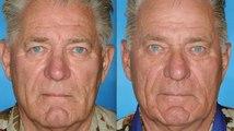 Des fumeurs photographiés aux côtés de leur jumeau non fumeur