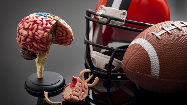 Brains Of Football Players Give Clues For A Safer Game