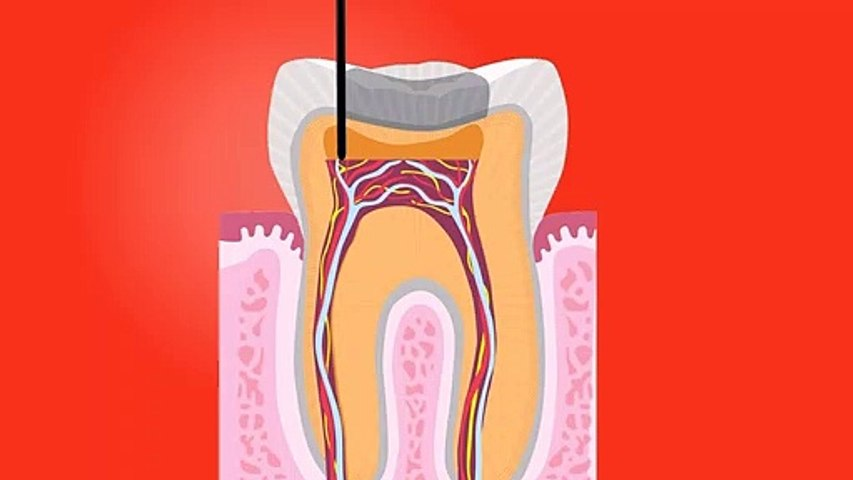 Tooth root canal dental' Dental surgery' Tooth-teeth-dentist_-_dental surgery in Hindi Urdu, dental surgery meaning,