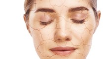 How Your Allergy Medicine Can Mess With Your Skin