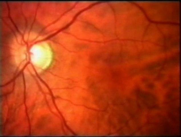 Sentidos y cerebro: Percepcion visual
