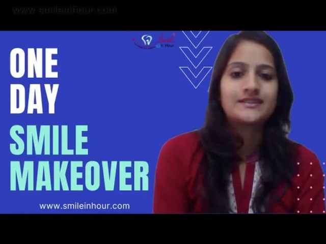 Instant Cosmetic Dental Veneers Review - One Visit Smile Makeover from Smile in Hour India
