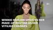 Winnie Harlow's Makeup Evolution