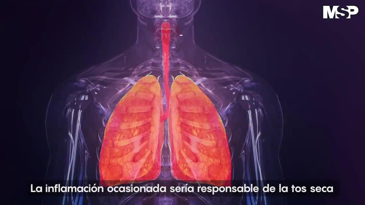 Síntomas del coronavirus – Así ataca el coronavirus en el cuerpo humano