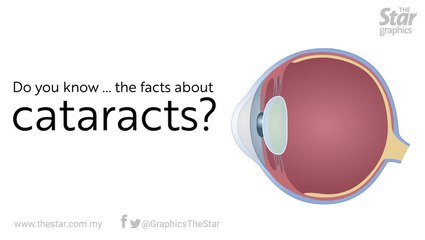 Do you know...the facts about cataract?