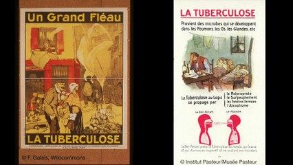 FUN MOOC : Tuberculosis