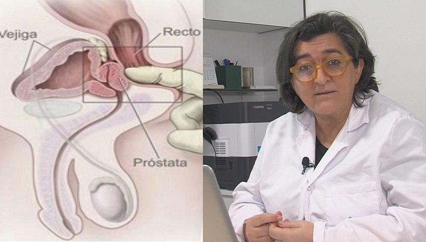 La lucha sin cuartel contra el cáncer de próstata