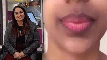 चेहरे के पास होठों के कालेपन को दूर करेगी ये 1 चीज, जानें Expert की सलाह | Boldsky