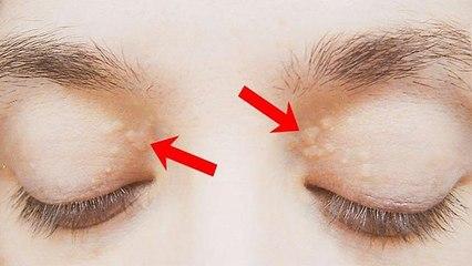 आंखों के ऊपर जमा कोलेस्ट्रॉल को हटाने के पक्के घरेलू उपाय । Boldsky