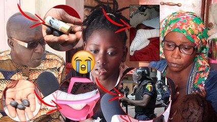 Colobane des gendarmes tirent sur une fille de 14ans par b@lle