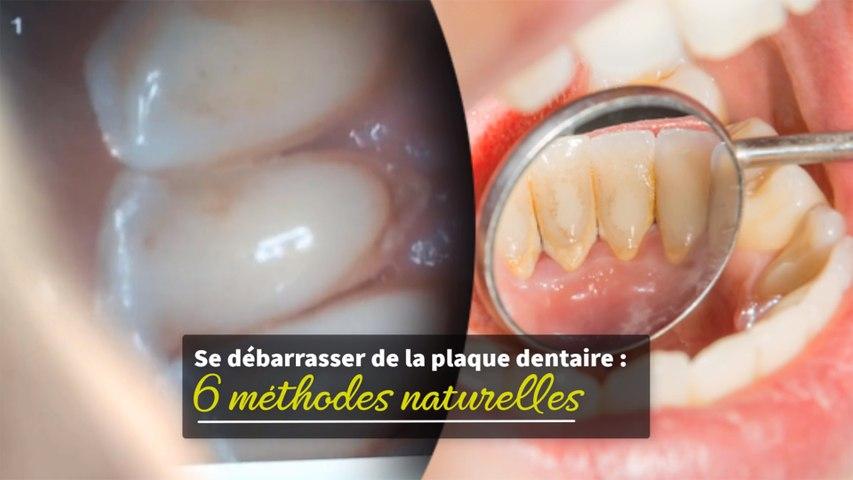 Se débarrasser de la plaque dentaire : 6 méthodes naturelles