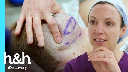 Este lipoma es demasiado grande para ser removido | Clínica de la piel | Discovery H&H